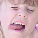 Burning Tongue Home Remedy