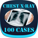Interpret Chest X-Ray With 100 Cases