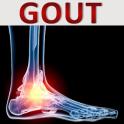 Arthritis Gout Uric Acid Diet